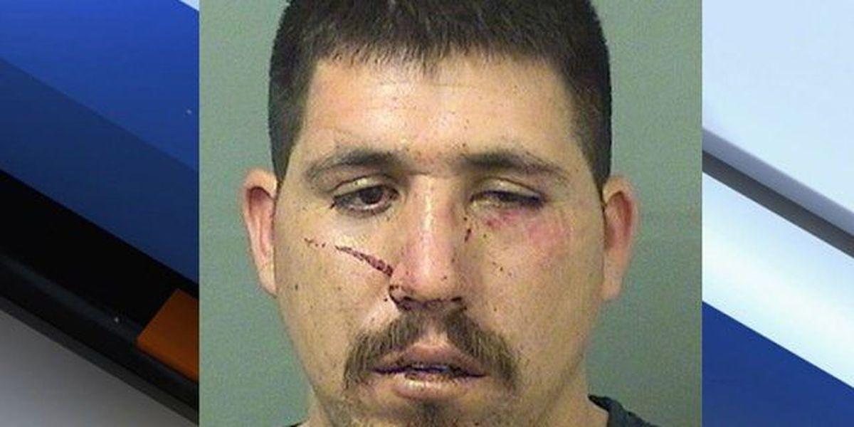 Cops: Man strangles girlfriend, home set on fire
