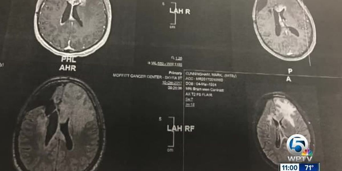 What's causing St. Lucie Co. glioblastoma cases?