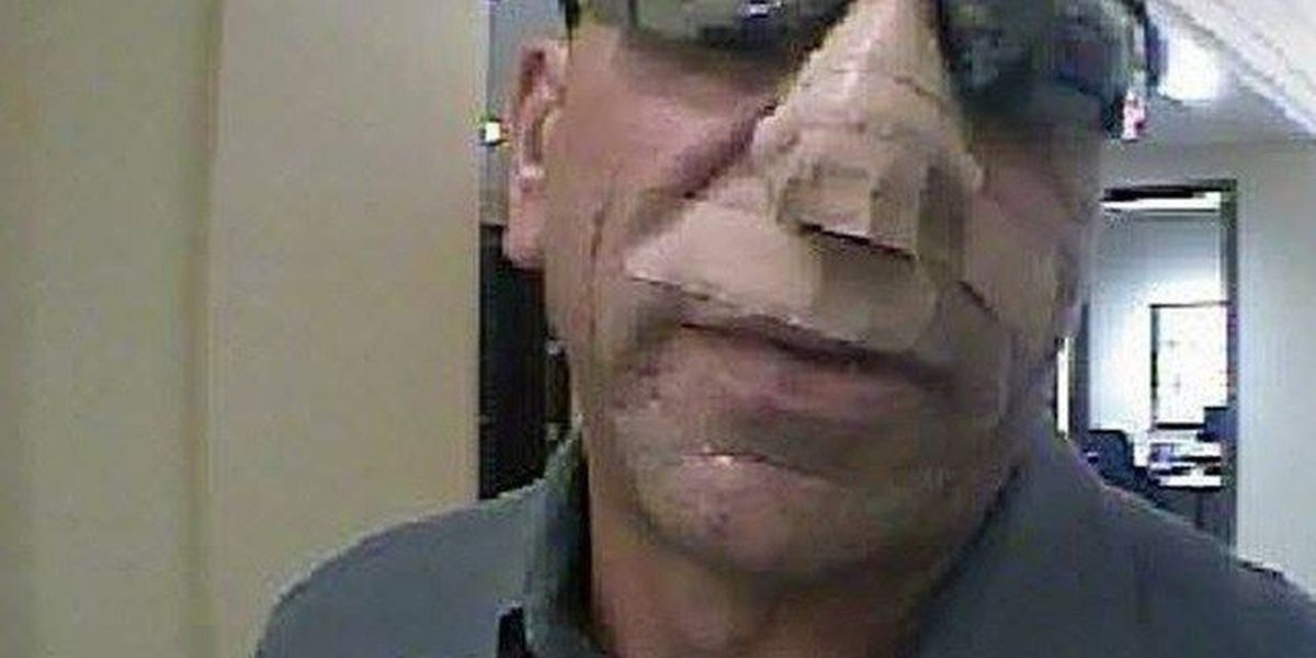 Bandaged-faced man suspected of bank robbery in Boca Raton