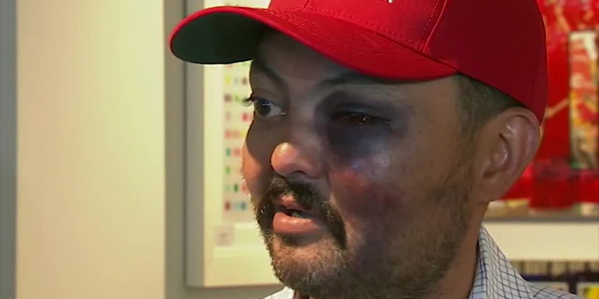 NY man claims he was attacked for wearing MAGA hat